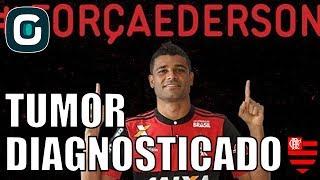 Ederson, meia-atacante do Flamengo, é diagnosticado com tumor no testículoAcompanhe também as nossas redes sociais:Facebook - https://www.facebook.com/gazetaesportivaTwitter - https://twitter.com/gazetaesportivaInstagram - https://www.instagram.com/gazetaesportiva