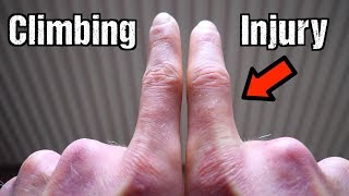 How I Injured My Finger Climbing + Recovery Strategy by Mani the Monkey