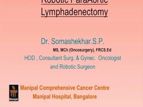 Robotic ParaAortic Lymphadenectomy