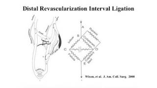 Management Of Vascular Steal From Dialysis Access