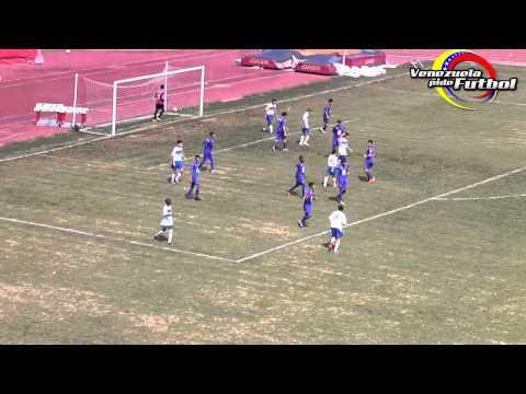 Deportivo la Guaira vs CIV Caracas