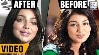 Ayesha Takia's 1st Appearance Post Plastic Surgery   LehrenTV