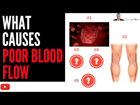 ♥ What Causes Poor Blood Flow & Circulation In Your Body