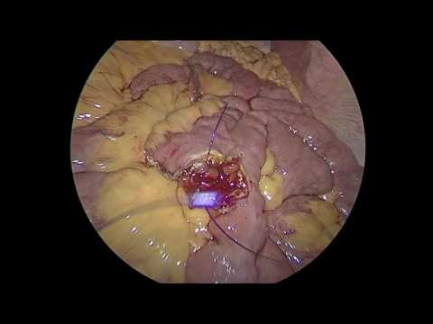 Revision Gastric Bypass for post Sleeve stricture