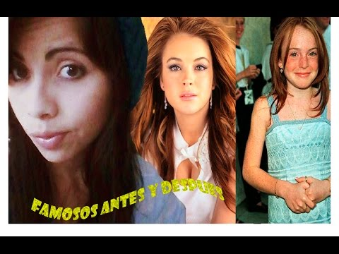 famosos antes y despues