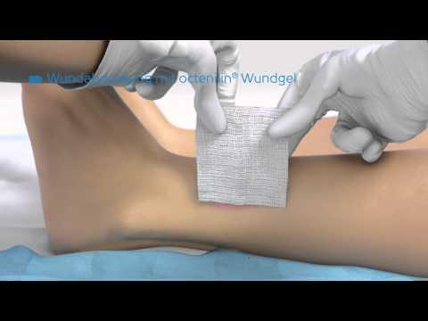 Anwendung octenilin® Wundgel & octenilin Wundspüllösung