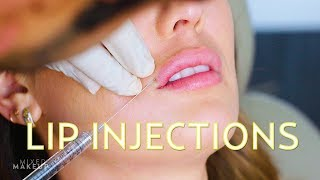 Video Natural-Looking Lip Injections! | The SASS with Susan and Sharzad MP3, 3GP, MP4, WEBM, AVI, FLV November 2018
