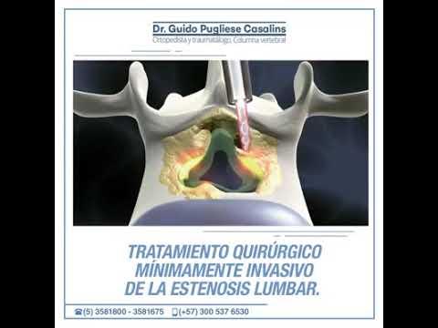 Guido Pugliese Casalins  Ortopedista