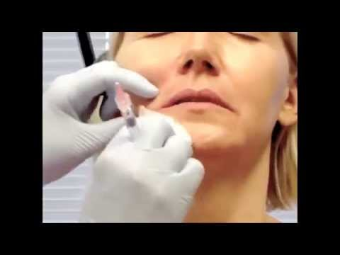 Injection of the corner of the mouth with Restylane hyaluronic acid