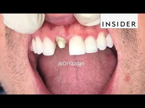 How Dentists Create Tooth Veneers And Crowns