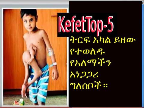 Kefet Top - 5 ትርፍ አካል ይዘው የተወለዱ የአለማችን አነጋጋሪ ግለሰቦች። part 4