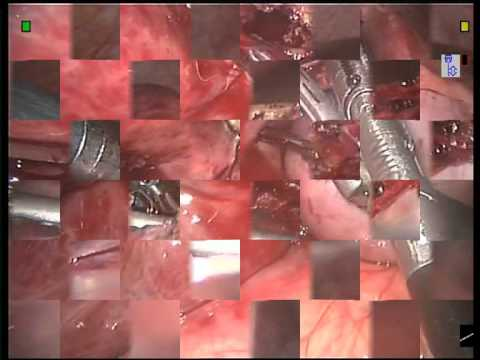 Hemangioma of the liver. Robotic resection