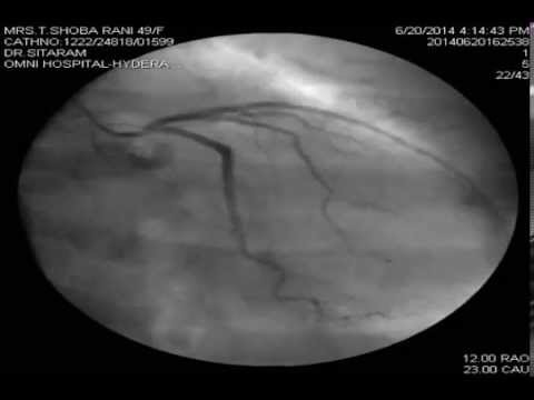 ANOMALOUS CORONARY ARTERY