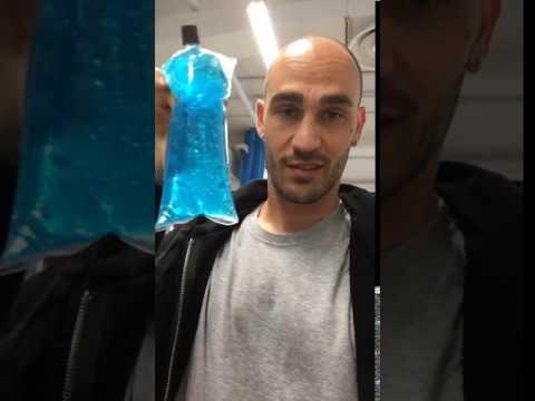 """Paolo Cannavaro rivela: """"Sono calvo per colpa del gel…"""""""