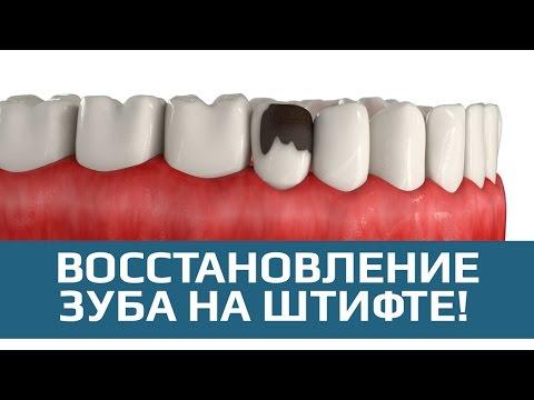 Наращивание зуба на штифте