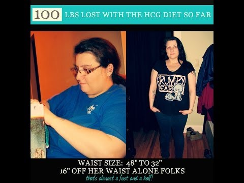 hCG Diet Reviews - 100lb Weight Loss and 16 Inches Off her Waist! - Episode 7