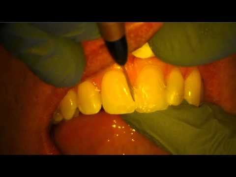 Fixing/Repairing Large Tooth Fracture