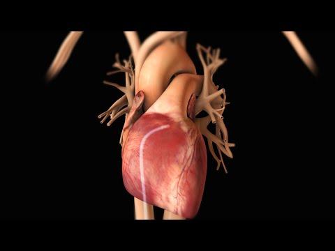le aritmie cardiache in uno splendido video in 3d!