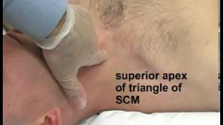 Download Lagu Jugular Central Venous Catheterization   Step by step Mp3
