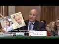 WEN Hair Care Danger Discussed at Senate Hearing Hair Loss, Rash