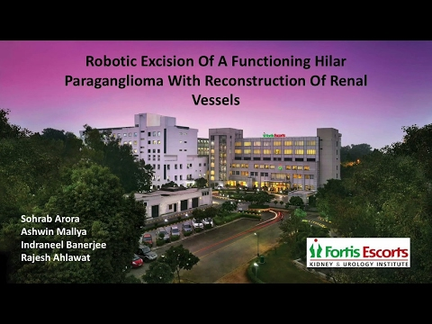 Robotic Excision Of A Functioning Hilar Paraganglioma With Reconstruction of Renal Vessels