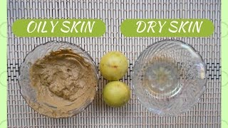 hello everyone....Today i am gonna share HOW TO WHITEN & BRIGHTEN SKIN WITH LEMON.i will share 2 LEMON SKIN WHITENING FACEPACKS...one for OILY SKIN & the other one for DRY SKIN.***********OILY SKIN:***********1.Lemon Juice2.Multani Mitti-http://amzn.to/2nRJvJP                           http://amzn.to/2og5omQ3.Rose Water-http://amzn.to/2nRJ8iL                         http://amzn.to/2oi4E11                         http://amzn.to/2ofZ6n4***********DRY SKIN:***********1.Lemon Juice2.Honey-http://amzn.to/2og5R8y                http://amzn.to/2ofXppK                 http://amzn.to/2oi1uu33.Olive Oil-http://amzn.to/2nRE5i5                   http://amzn.to/2ogif8vplz LIKE the video & SUBSCRIBE to my channelCONTACT:mkb.makeubeautiful@gmail.comFOLLOW ME: TWITTER:https://twitter.com/makeUabeautifulFACEBOOK:https://www.facebook.com/MakeUbeautiful-1671222829841630/XOXOMoumitaWATCH MY OTHER VIDEOS:-TOP 6 AFFORDABLE SUMMER LIPSTICKS FOR INDIAN SKINTONE UNDER Rs 650/-  makeUbeautifulhttps://youtu.be/urIEvS7A7nEHOW TO LIGHTEN DARK UNDERARMS EASILY AT HOME  GET RID OF DARK ARMPITS FAST  makeubeautifulhttps://youtu.be/r6vJMC28bNsGET GLOWING SKIN INSTANTLY  #WINTERSPECIAL Facemask for Healthy Skinhttps://youtu.be/eHy88IX7vbkBEST BODY OIL AT AFFORDABLE PRICE  PATANJALI TEJAS TAILUM REVIEWhttps://youtu.be/6bchAGEcv50GET FAIR SKIN IN JUST 20 MINUTES  VERY EFFECTIVE NATURAL HOME REMEDYhttps://youtu.be/5uNqnGDa3-sMagical Remedy To Get Crystal Clear Spotless Skin Overnight  100% Tried & Testedhttps://youtu.be/SwG4qTRHJ2sHow To Make BRIDAL UBTAN To Get The Bridal Glow https://youtu.be/J7KWrEa7Ul8DIY NATURAL HOMEMADE SCRUB FOR FACE & BODY  GET SOFT,SMOOTH,HEALTHY SKIN INSTANTLY https://youtu.be/ni92H1GAz2cGET RADIANT, BRIGHT, GLOWING SKIN  DIY COFFEE FACEMASK  makeUbeautifulhttps://youtu.be/sBmL9TMF8x0MAGICAL DRINK FOR EXTREME WEIGHT LOSS  NO DIET ,NO EXERCISE   100% EFFECTIVE  RESULTShttps://youtu.be/2Bed58vjdX8How To get CLEAR BRIGHT SKIN   DIY Easy Homemade Facepackhttps://youtu.be/1AWEMR35