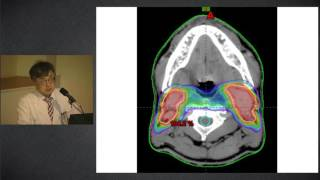 두경부암의 방사선치료 미리보기