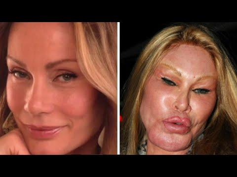 Nine People Who Took Plastic Surgery Way Too Far!