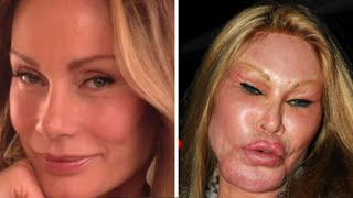 Video 9 People Who Took Plastic Surgery Way Too Far MP3, 3GP, MP4, WEBM, AVI, FLV Mei 2019