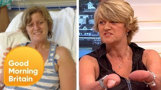 Subscribe now for more! http://bit.ly/1NbomQaQuadruple amputee, Corinne Hutton, meets Paralympian, Jonnie Peacock, in an inspiring discussion regarding their disabilities.Broadcast on 21/07/17Like, follow and subscribe to Good Morning Britain!The Good Morning Britain YouTube channel delivers you the news that you're waking up to in the morning. From exclusive interviews with some of the biggest names in politics and showbiz to heartwarming human interest stories and unmissable watch again moments. Join Susanna Reid, Piers Morgan, Ben Shephard, Kate Garraway, Charlotte Hawkins and Sean Fletcher every weekday on ITV from 6am.Website: http://bit.ly/1GsZuhaYouTube: http://bit.ly/1Ecy0g1Facebook: http://on.fb.me/1HEDRMbTwitter: http://bit.ly/1xdLqU3http://www.itv.com
