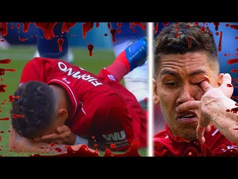 Brutal Tackles/Injuries In Football ● 2018