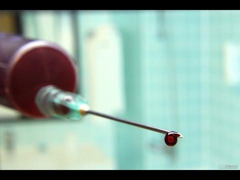 Prueba de VIH, VIH Positivo, Negativo, Seropositivo