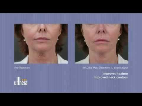 Ulthera Laser Skin Tightening Los Angeles | Beverly Hills