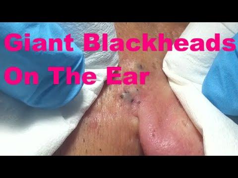 Josefa Reina: Giant Blackheads on the Ear (Part 1)