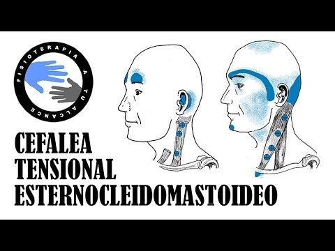 esternocleidomastoideo   facilisimo.com