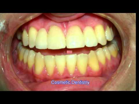 Cosmetic Dentistry 7-9-13 -s