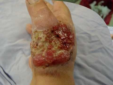 amputacion - Cáncer de piel invasor con extensión a músculo y hueso. Para mayor información sobre el caso clínica y el tratamiento realizado dirijase a http://centrodecir...