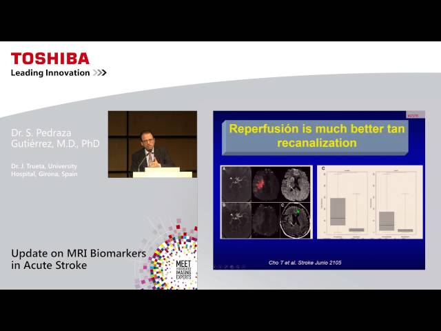 Update on MRI biomarkers in acute stroke