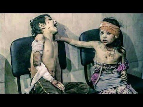 सीरिया में जारी है हैवानियत,और दुनिया में ख़त्म हो गयी इंसानियत! |Pray For Syria Stop War End Crisis