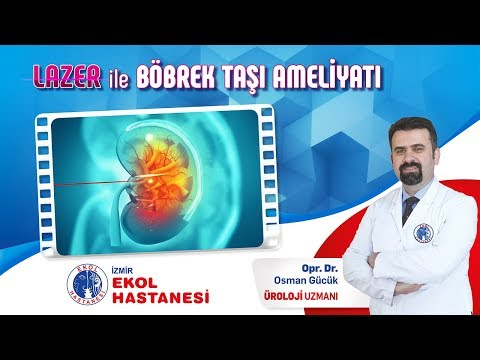 Lazerle Böbrek Taşı Ameliyatı