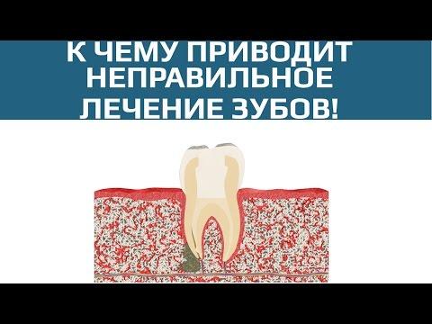 Плохо запломбированный канал зуба