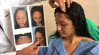 Video Immediately After a Hairline Lowering/Forehead Shortening Surgery MP3, 3GP, MP4, WEBM, AVI, FLV Juli 2018