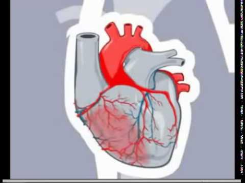 le cause e i sintomi dell'infarto