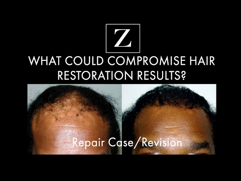 What Could Compromise Hair Transplant Or Hair Restoration Surgery Results?