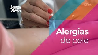 Alergias De Pele: Melhores Cuidados E Produtos