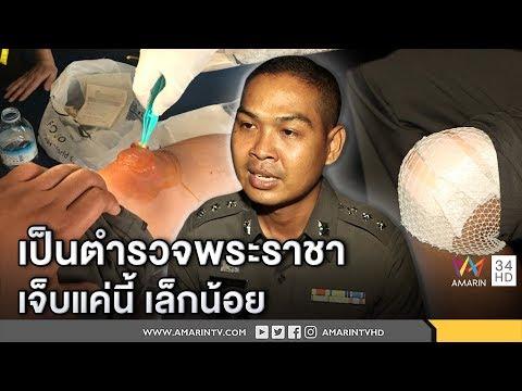 ทุบโต๊ะข่าว : เปิดใจตำรวจพระราชา นั่งถวายบังคมบนพื้นร้อนระอุ ชี้เจ็บแค่นี้มันเล็กน้อย 24/10/60