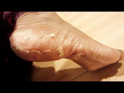 Baby foot - GET BABYFOOT HERE!!! http://colouredbeautiful.com/my-foot-transformation-eliminate-crusty-feet/
