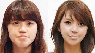 61 Korean Plastic Surgery Before and After