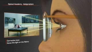 Vision 101: Astigmatism