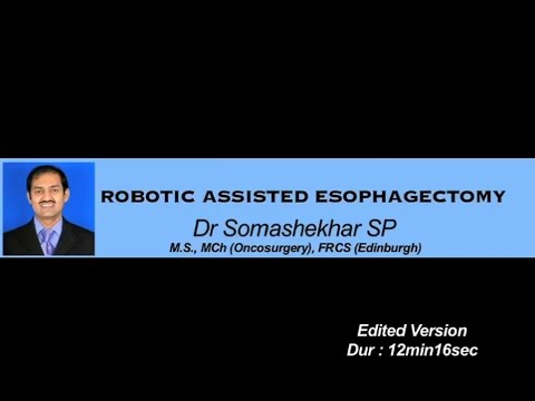 Robotic Assisted Esophagectomy